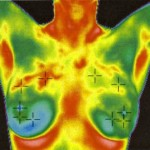 Thermography-The-Science-of-Breast-Screening1-kitchener-tvfc1