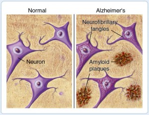 amyloid-plaques-in-alzheimers-disease